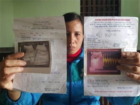 Mất thận sau ca mổ đẻ ở Nam Định – đâu là sự thật?