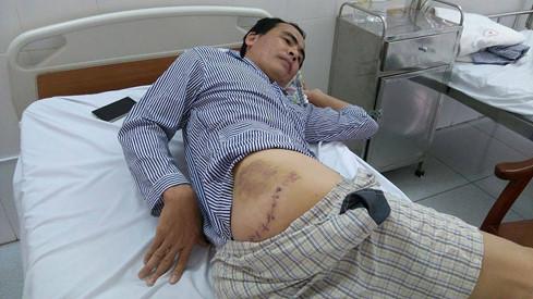 Anh Thành bị chém vào mông phải vết dài 20 cm, khá sâu phải khâu từ trong ra ngoài hơn 10 mũi