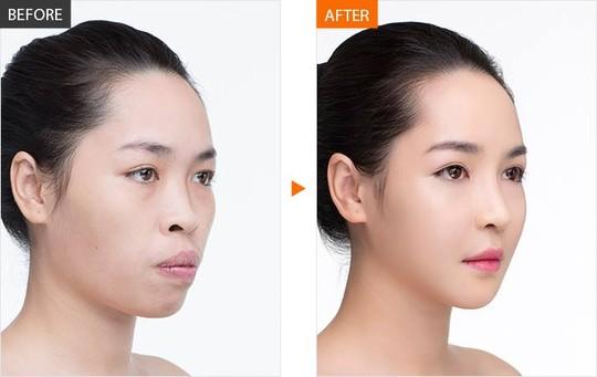 Hình ảnh của Quỳnh trước và sau khi được phẫu thuật