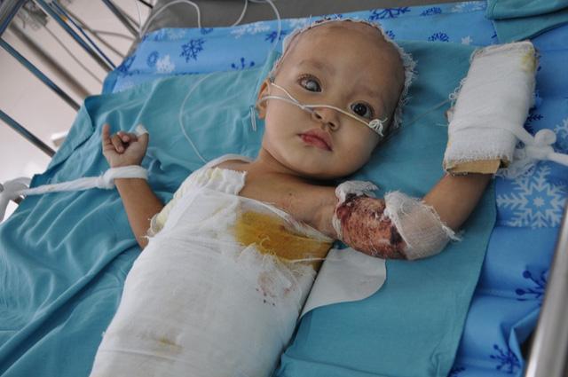 Bị ngã vào nồi canh nóng khiến cho bé Thảo My bị bỏng nặng.