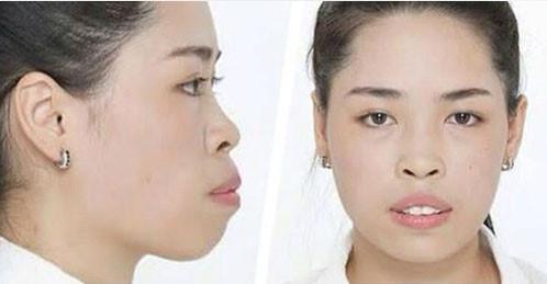 Ngoại hình xấu xí từng gây khó khăn cho Thanh Quỳnh khi xin việc