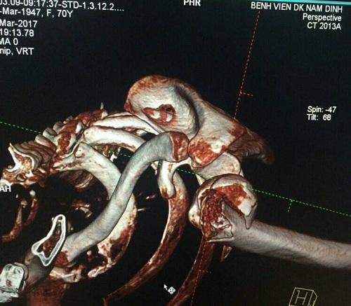 Hình ảnh khớp vai bị gãy của bệnh nhân.