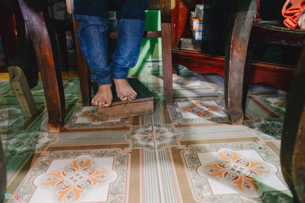 Sinh ra không được may mắn như các bạn đồng trang lứa, Nguyễn Thị Ngọc Tâm, 27 tuổi, bị mắc bệnh xương thủy tinh, một chân bị ngoặt lên trên. Nhờ can thiệp của khoa học, Tâm đã duỗi thẳng được chân nhưng sức khỏe giảm sút.