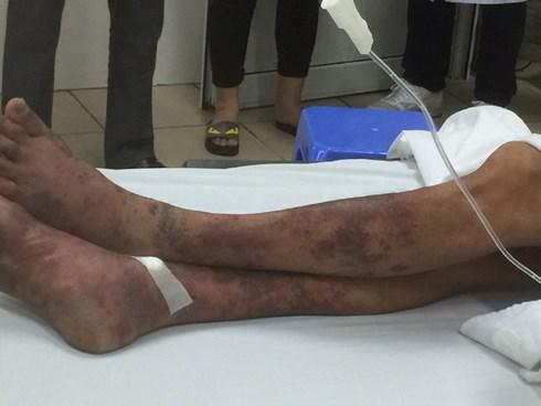 Nam Định: Ăn tiết canh, gần chục ca viêm màng não, hoại tử da vì liên cầu lợn