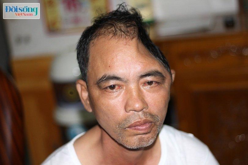 Nam Định: Người đàn ông mất một nửa hộp sọ sau vụ tai nạn giao thông kinh hoàng