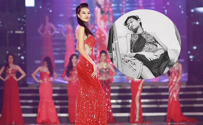 Xót xa hình ảnh da bọc xương của người mẫu 9X gốc Nam Định bị ung thư buồng trứng giai đoạn cuối