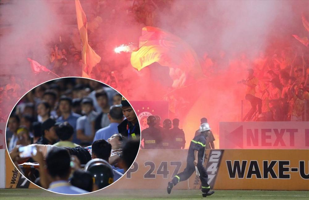 Fan cuồng bắn pháo sáng suýt chết người ở sân Hàng Đẫy: Hôm nay, kỷ luật CLB Hà Nội và Nam Định