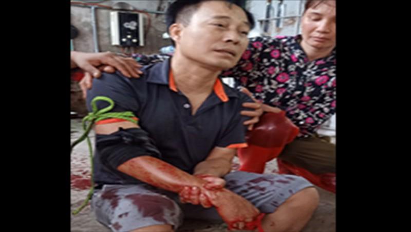 Vụ truy sát gây thương tích nghiêm trọng ở Giao Thủy (Nam Định): Nạn nhân đang chờ kết quả giám định tỷ lệ tổn thương cơ thể