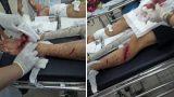 Nam Định: Hơn 10 côn đồ mang dao, kiếm chém người trọng thương