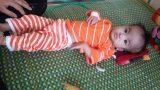 Nam Trực: Kêu gọi những mạnh thường quân giúp đỡ cho bé gái 11 tháng tuổi