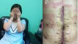 Ba lần nhập viện bác sĩ mới tìm ra bệnh, sản phụ đau đớn mất con đầu lòng