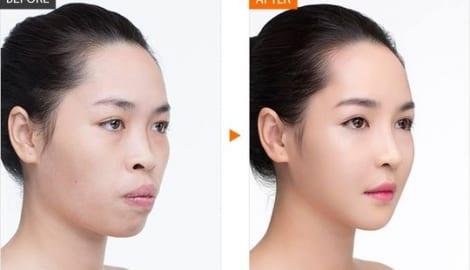Cuộc sống như mơ của Vũ Thanh Quỳnh – hot girl phẫu thuật thẩm mỹ