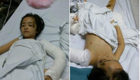 Bà và mẹ mất trên đường đi khám bệnh: Bé gái 6 tuổi đau đớn trên giường bệnh