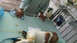Đau xót: Bé gái 21 tháng tuổi ở Nam Định ngã vào nồi canh 25 lít, bỏng nặng toàn thân