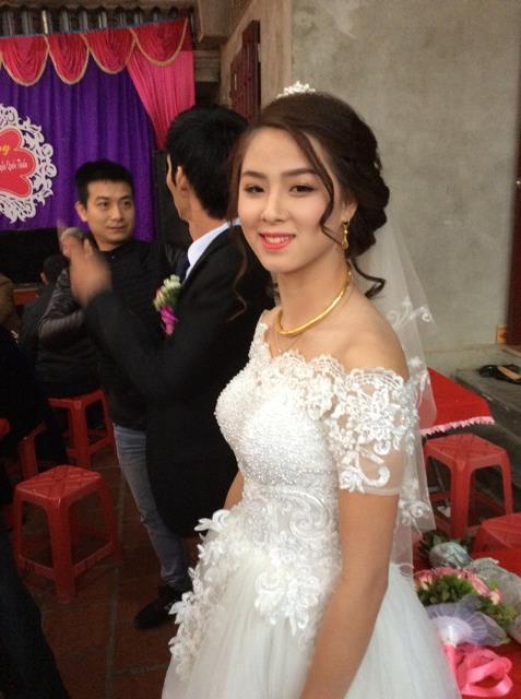 Cô dâu xinh đẹp bị tật bẩm sinh khiến nhiều người ngắm nhìn và xót xa...
