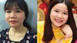 """Nữ sinh Nam Định """"vịt hóa thiên nga"""" chỉ sau 2 tháng"""