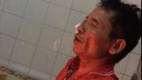 Cận mặt đối tượng gây án trên bàn nhậu ở Nam Định khiến 1 người chết